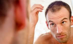 Come curare la calvizie o Alopecia
